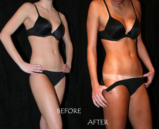 Image Result For Electric Beach Tanning